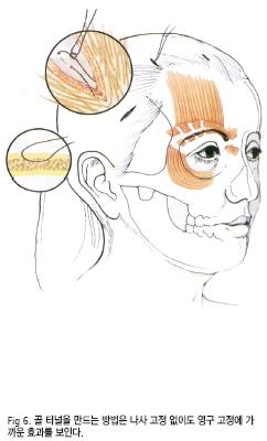 윤을식교수님 칼럼 전두부거상술 III-2 figure6