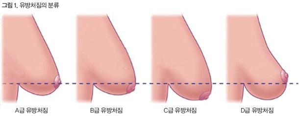 윤을식교수 의학칼럼 가슴처짐증 그림1