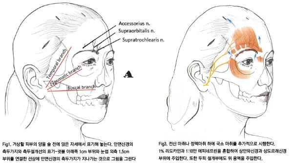 윤을식교수님 칼럼 전두부거상술 III figure1