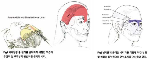 윤을식교수님 칼럼 전두부 거상술 III figure. 4,5